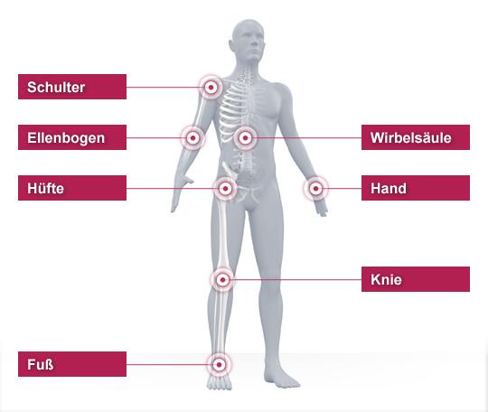 Niels Stensen Kliniken Body Browser