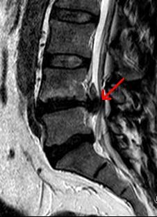 Das Bild des Magnet-Resonanz-Tomographen (MRT) zeigt einen Ausschnitt der Wirbelsäule. Ein roter Pfeil markiert einen Bandscheibenvorfall zwischen dem 4. und 5. Lendenwirbel